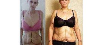 看节食减肥的身体与心理变化 吓得我赶紧拿出了海碗