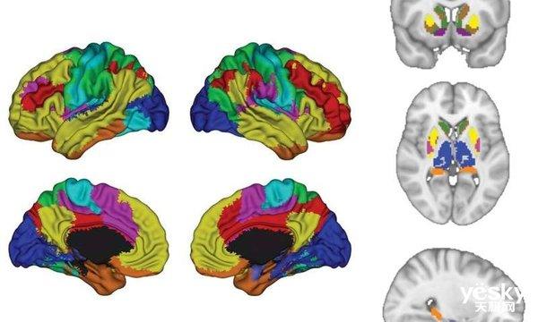 新突破:AI可预测抑郁症治疗结果
